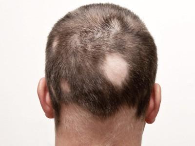 IMG-Caduta-capelli-e-alopecia
