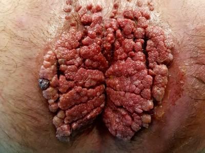 IMG-Infezioni-virali-1